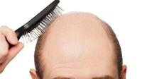 日本人男性の薄毛人口1300万人?!多くの人が抱える薄毛の悩み
